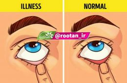 تشخیص سلامتی با رنگ پلک چشم