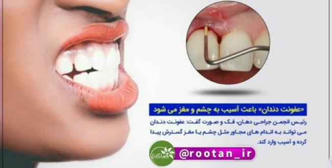 عفونت دندان باعث آسیب به چشم