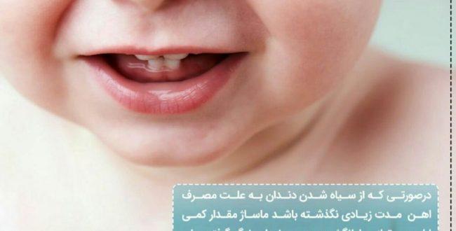 درصورتی که از سیاه شدن دندان