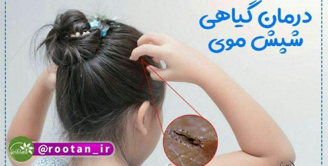 درمان گیاهی شپش موی سر با اس