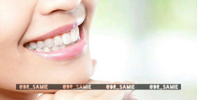 بهترین سفید کننده دندان خانگی