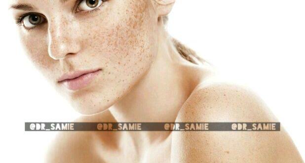 از بین بردن لک های پوستی با روغن بادام