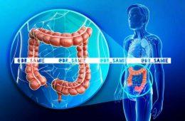عوامل موثر در بروز سرطان کلورکتال، چهارمین سرطان شایع