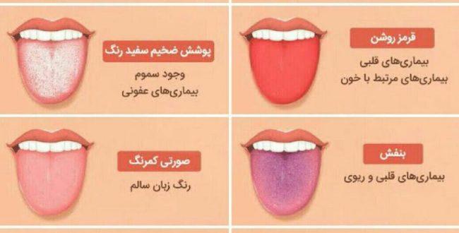 با توجه به رنگ زبان میتونیم به بیماریهای مختلف پی ببریم