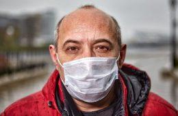 ریسک ابتلا به موارد شدیدتر ویروس کرونا در مردان طاس بیشتر است