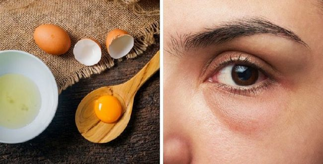 با سفیده تخم مرغ، پف زیر چشم ها را از بین ببرید