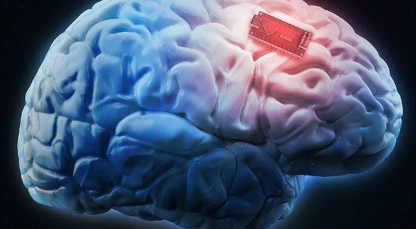 محققان با کاشت تراشهای در مغز معلولان نخاعی توان حرکت را به آنها بخشیدند
