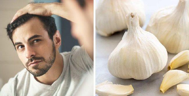 درمان ریزش مو، با استفاده از معجزه ای به نام سیر